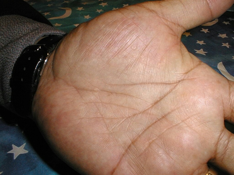 itchy rash on palms of hands #10